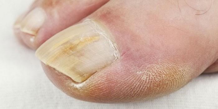 Photo of Вилікувати грибок нігтів народними засобами швидко – найбільш ефективні рецепти з відгуками